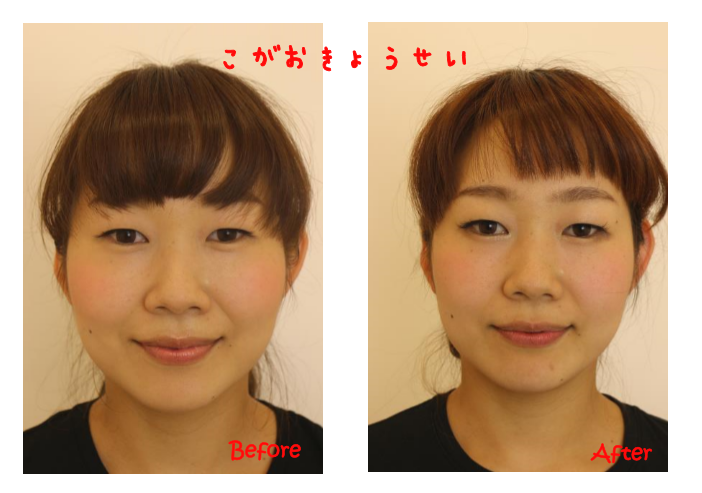 驚きのBefore-After!!