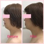 La.beaut'e(ラ・ボーテ)のメニューの写真 - B-spa TUNING Before After