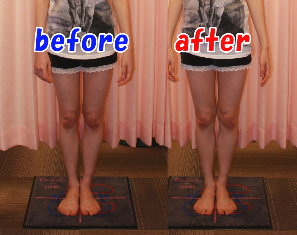 BMK美脚矯正 Before-After