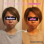 顔コルギbefore~after  ¥3,900